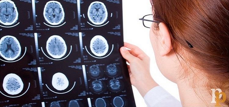 ¿Qué es la neuropsicología?
